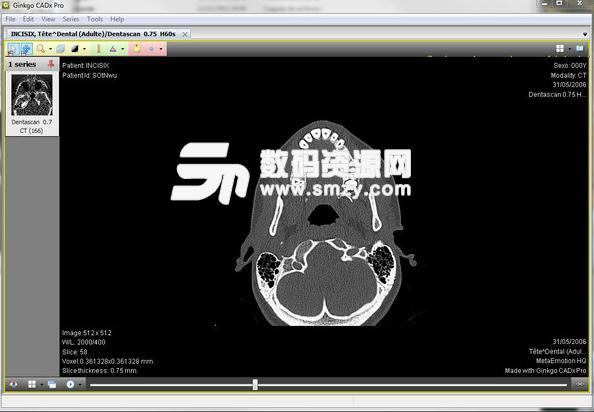 Ginkgo CADx Pro医学图像浏览工具
