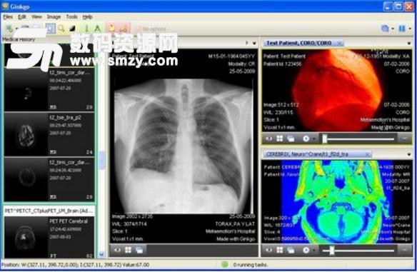 Ginkgo CADx Pro医学图像浏览官方版